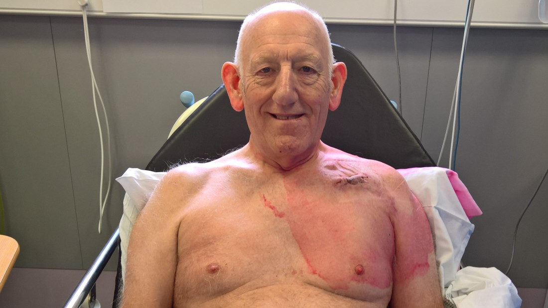 Compression bandage removed (complete with chest hair!). Good to go home.